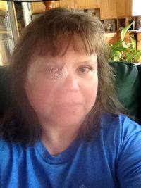 Me after right eye cataract surgery