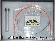 Shatners_kidney_stone_1_3